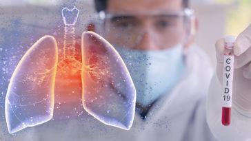 plămânii bolnavilor Covid-19